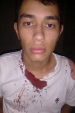Cleberson Acosta levou tiro de raspão durante perseguição (Foto: Divulgação/DOF)