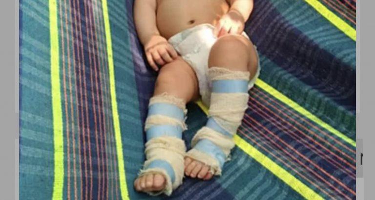 SOLIDARIEDADE: Bela Vista se mobiliza para ajudar bebê com doença rara