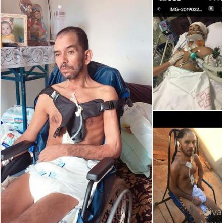 Bela-vistense Lourenço não se recupera de acidente e família pede apoio e doações